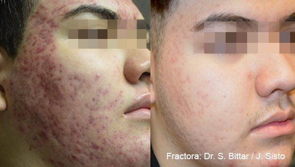 Laserbehandeling Acne