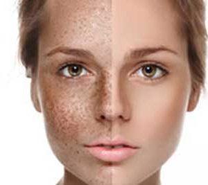 Pigment huid
